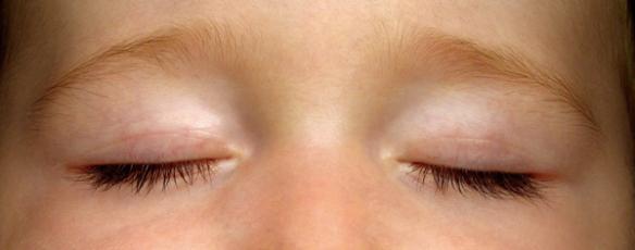 blinking-eyes
